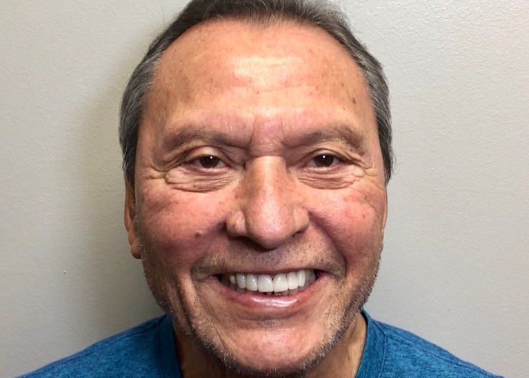 Patient smiling wide after full mouth reconstruction procedure.