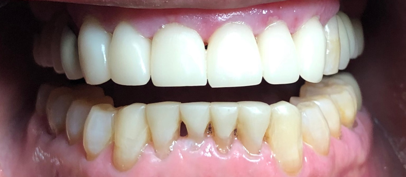 After close up of teeth after full mouth rehabilitation at Crossroads Family Dental.
