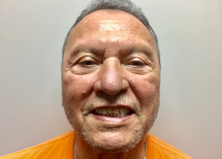 Patient smile with damaged teeth before full mouth reconstruction procedure.