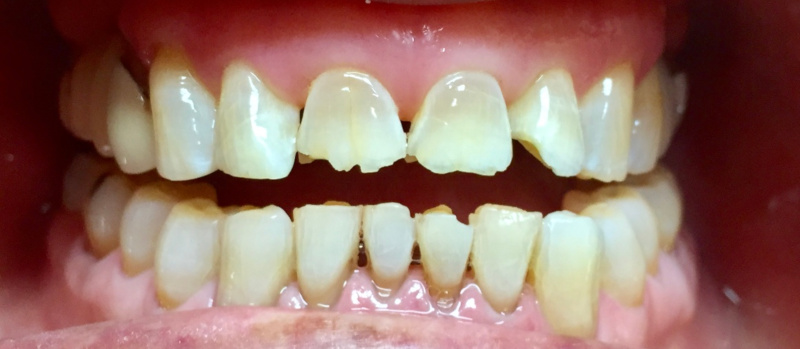 Before close up of damaged teeth before full mouth rehabilitation at Crossroads Family Dental.