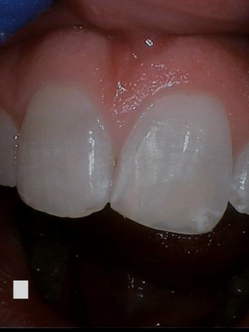 After image of chipped tooth fixed with dental bonding at Crossroads Family Dental.