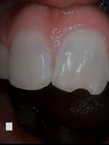 Close up of a chipped tooth before treatment
