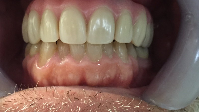 Patient teeth closeup after receiving All on 4 dental implant prosthesis at Crossroads Family Dental.