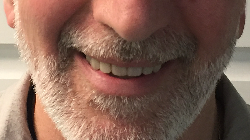 Patient smile after All on 4 Implant procedure