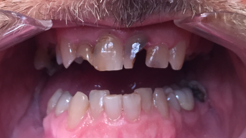 Patient teeth closeup before receiving All on 4 dental implant prosthesis at Crossroads Family Dental.