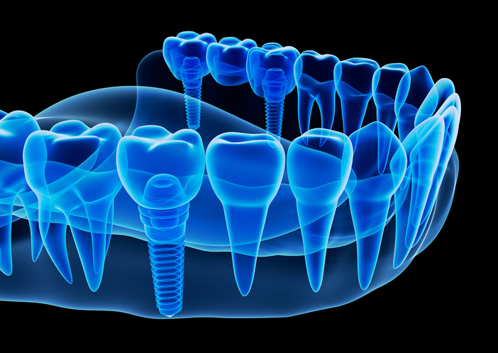 An image of Dental Implants.