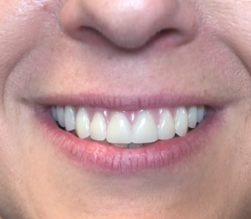 Patient 2 smile after All on 4 dental implant procedure