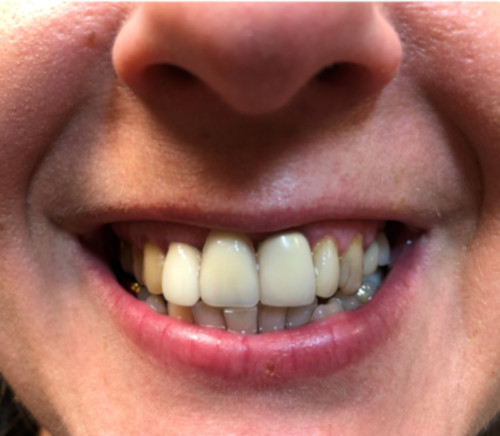 Patient 2 smile before All on 4 dental implant procedure