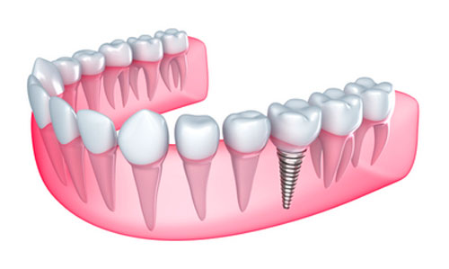 Dental Implants Can Provide a Way to Remain Looking Younger