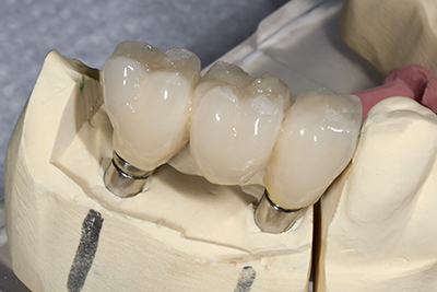 Close up of lab created dental bridge, as used by dentist in Schererville, IN.