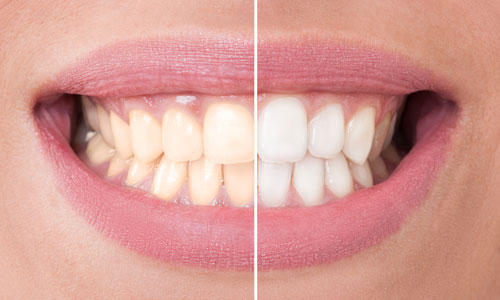 Before and after of a patient's teeth whitening treatment at dentist office in Schererville, IN.