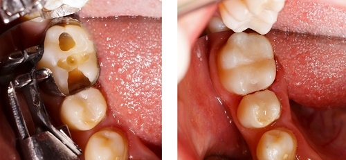 Before and after of a tooth colored filling placement by dentist in Schererville, IN.